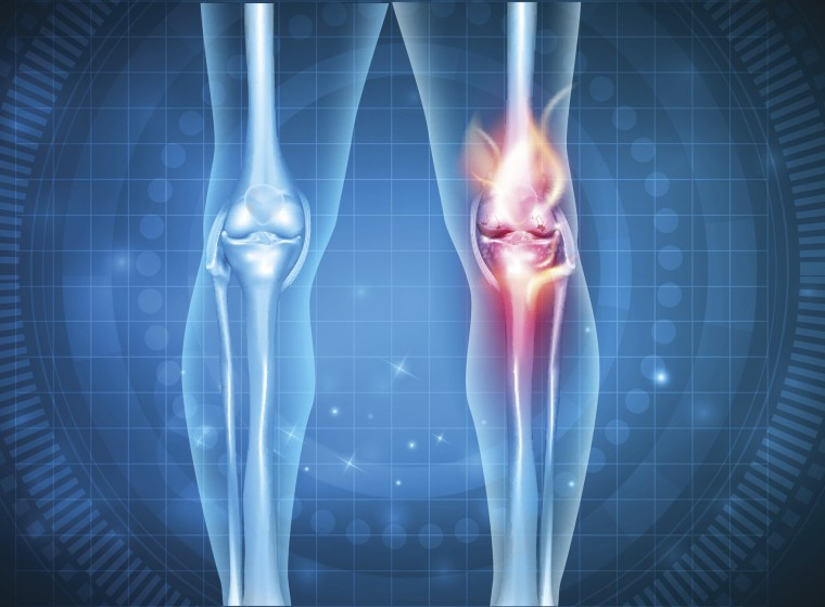 Preclinical Results from Osteoarthritis Gene Therapy Studies Published by GeneQuine and Collaborators in Leading Arthritis Journal
